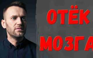 С помощью Кремля у Навального есть шансы! Наихужшие опасения оправдались, нужна помощь